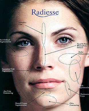 radiesse-features-large.png