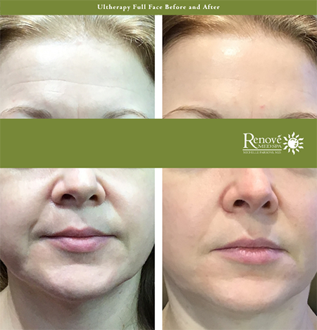 Ultherapy Full Face Before and After