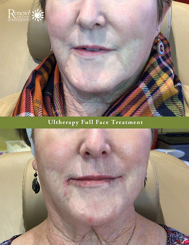 Ultherapy Full Face Treatment