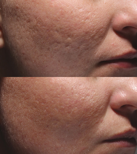 Acne_Patient_3_before_after_leftside.jpg