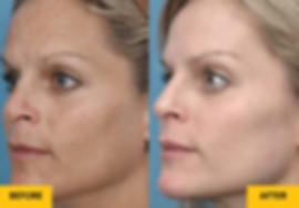 About Skin Elos Skin Rejuv