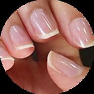 nail ex2.png
