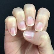 nail 1.png