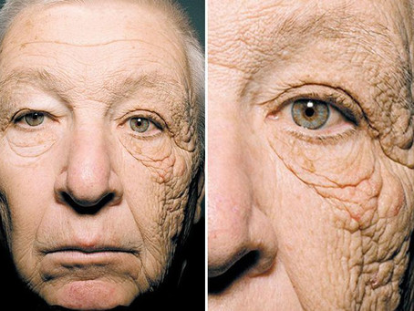 """""""This shocking picture of a truck driver shows what 28 years of sun damage does to your face"""""""