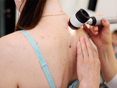 Your First Skin Check