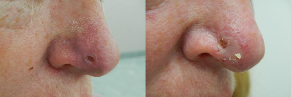 Right Nasal Tip BCC