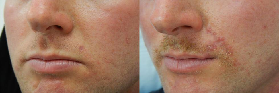 Basal Cell Carcinoma, Left Upper Lip