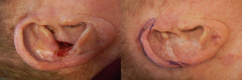 Basal Cell Carcinoma, Right Ear