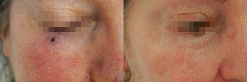 Basal Cell Carcinoma, Right Lower Eyelid