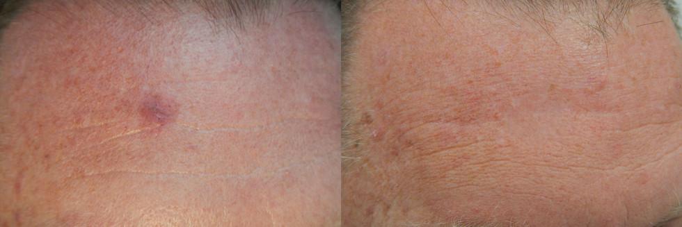 Insitu Melanoma, Forehead