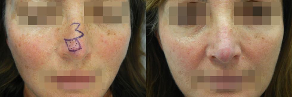 Basal Cell Carcinoma, Right Nasal Tip