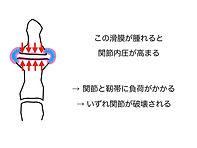 説明 変性疾患.022.jpeg