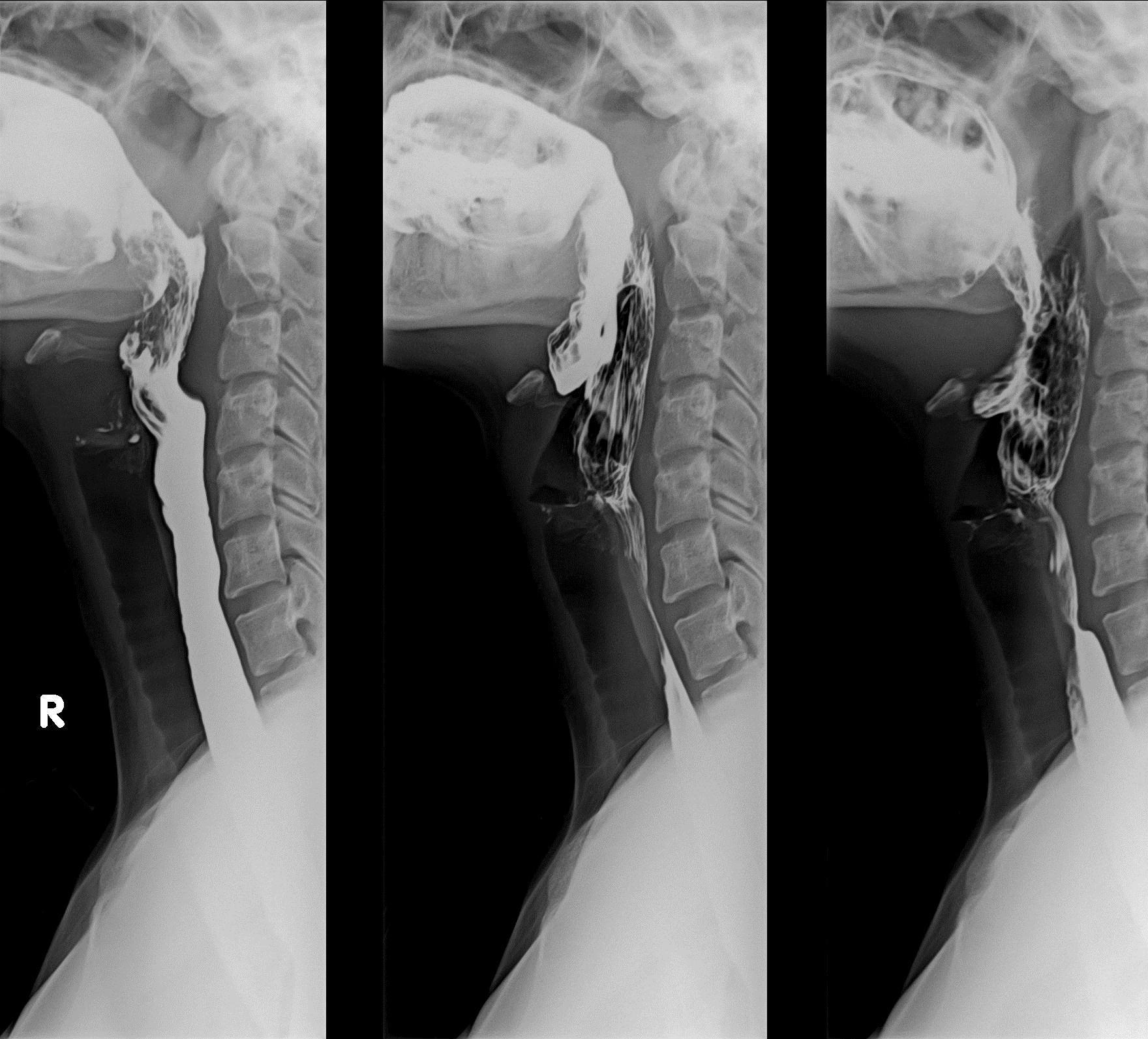 Barium Swallow/ Esofagograma