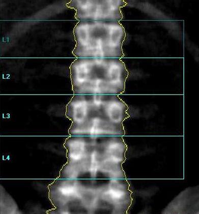 Dexa_AP_Spine.jpg