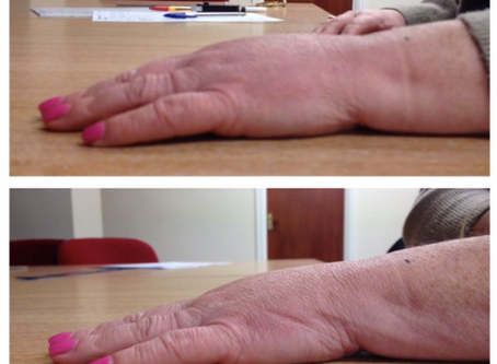 Addressing Breast Cancer-Related Lymphedema Using The Reflexology Lymph Drainage Technique