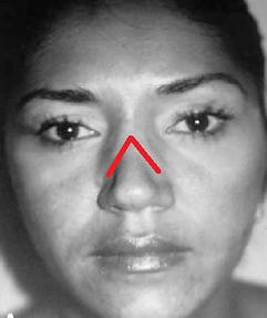 Inverted V deformity