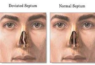 Nose Septum