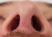 open rhinoplasty scar