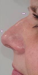 Nasal hump