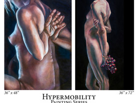 Grant Awarded for 'Hypermobility' Series