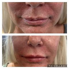 Lip and Nasolabial filler