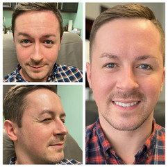 Dysport for forehead, glabella, and crows feet