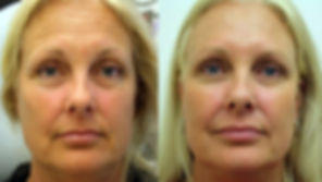Botox-Before-and-After-1.jpg