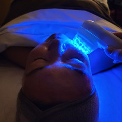 Blue LED light therapy for acne