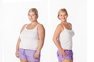 before and after weight loss. rejuvenati