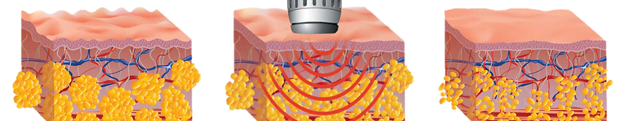 Slimspec is an acoustic radial wave therapy machine for removing cellulite