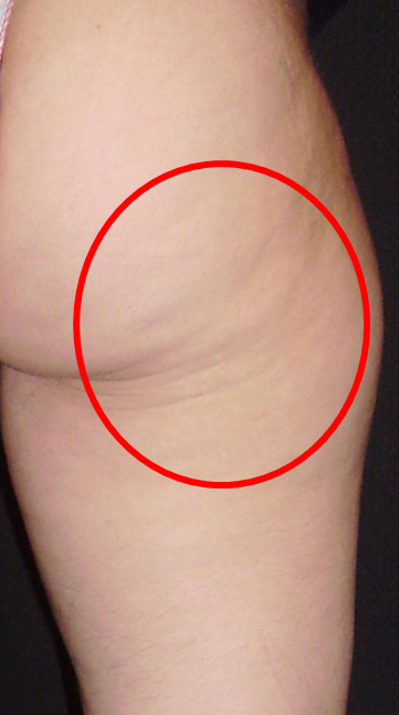 Slimspec effective cellulite removal – you asked, we answered