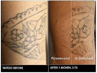 Tattoo Before and after 1 month with PicoSure Picosecond Laser vs Q-Switched Laser