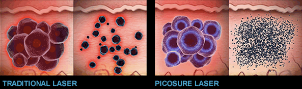 How It Works:  The differences between a tradtional tattoo removal laser and the PicoSure laser