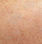 Taz tattoo successfully removed after 3 PicoSure Laser treatments