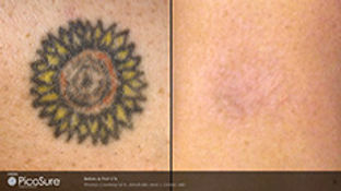 Sunflower tattoo successfully removed after 3 PicoSure Laser treatments