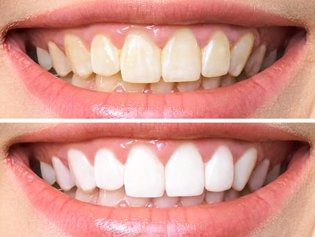 ¡3 pasos para cuidar tus dientes como debe ser!