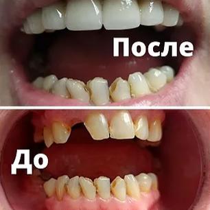 """Кейс """"Протезирование верхнего зубного ряда"""""""