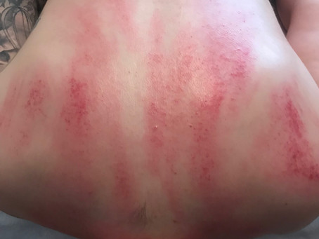 Gua Sha, Cupping's Ancient Cousin
