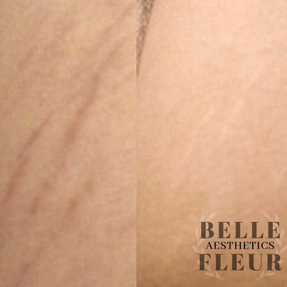 Stretch mark reduction / Camouflage