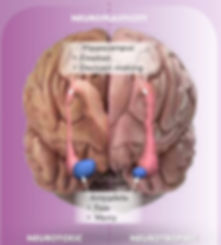 Stressed Brain  September 2019.jpeg
