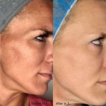 Ranae Moore SkinPen2.jpg