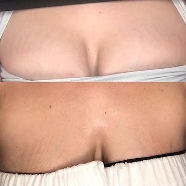SkinPen1.jpg