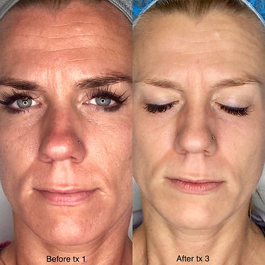 Ranae Moore SkinPen pics.jpg