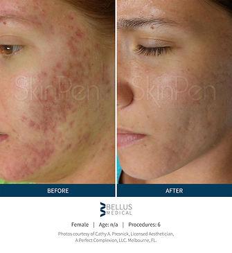 skinpen acne.jpg