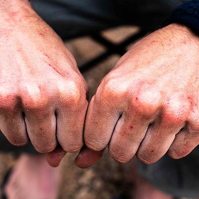 ClimbersFinest-klettern-lifestyle-care-4