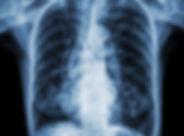 X-Ray-2.jpg