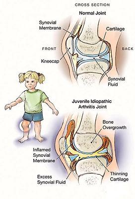 Ραγοειδίτιδα, παιδοφθαλμίατρος, στραβισμος, στραβισμός, stravismos, παιδοφθαλμιατρος, παιδοοφθαλμίατρος ιωάννινα, οφθαλμιατρος για παιδια, οφθαλμιατρος γιαννενα, οφθαλμιατρος πατρα, θεραπεια στραβισμου, Μελέτη στραβισμού, Αντιμετώπιση Διπλωπίας, Χειρουργική Στραβισμού, Δακρύρροια στα παιδιά, Αμφιβληστροειδοπάθεια Προωρότητας, διαλείπον στραβισμός, εσωτροπία, συγκλίνων στραβισμός, εξωτροπία, αποκλίνων στραβισμός, ανωτροπία, υποτροπία,