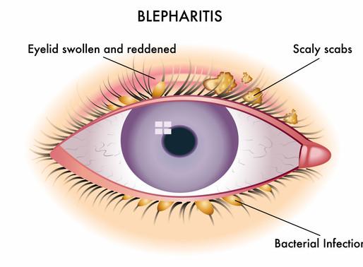 Τι είναι η βλεφαρίτιδα;