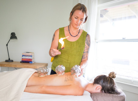 Cupping Therapy- what is it and how does it work?