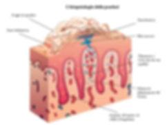 Psorasi, psoriasi a placche, psoriasi Guttata, psoriasi inversa, cura per psoriasi, rimedio naturale per psoriasi